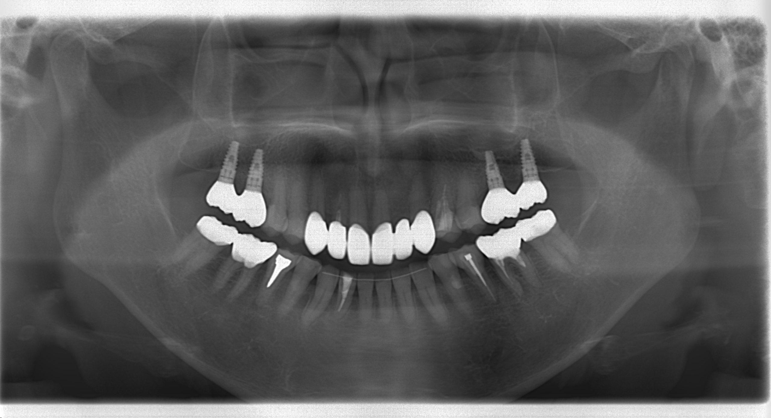 咬める入れ歯とインプラントでかみ合わせ治療した例